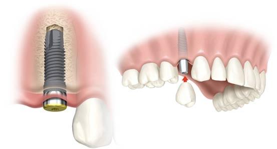 bang-gia-cay-implant-tai-nha-khoa-can-tho-ts-lam
