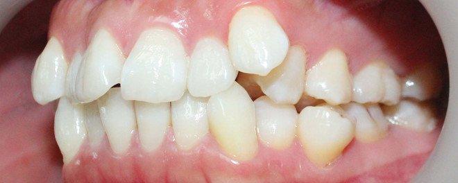 Tại sao răng lại mọc lệch? Nha Khoa Cần Thơ
