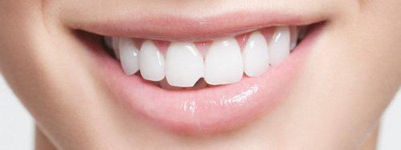 Răng sứ bị mẻ có trám được không? Răng Sứ Cần Thơ