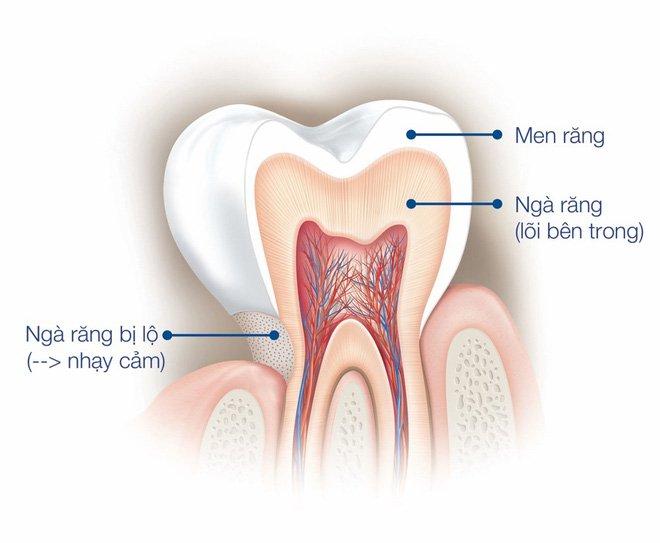 Tại sao men răng dễ bị hư tổn? Nha Khoa Cần Thơ