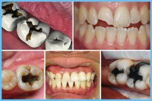 Trám răng laser tech để làm đẹp hiệu quả | Trám răng Cần Thơ