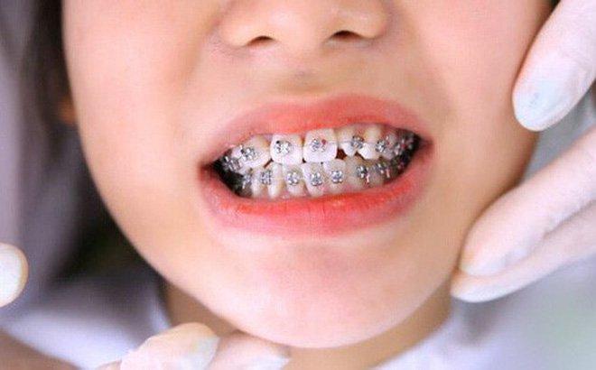 Thời điểm lý tưởng để niềng răng cho trẻ em | Nha khoa trẻ em Cần Thơ