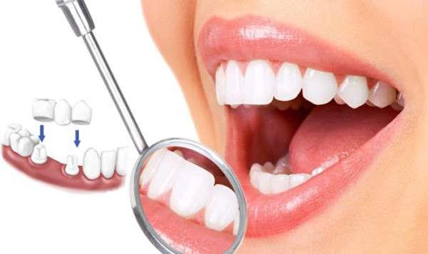 Khi nào nên bọc răng sứ | Bọc răng sứ Cần Thơ