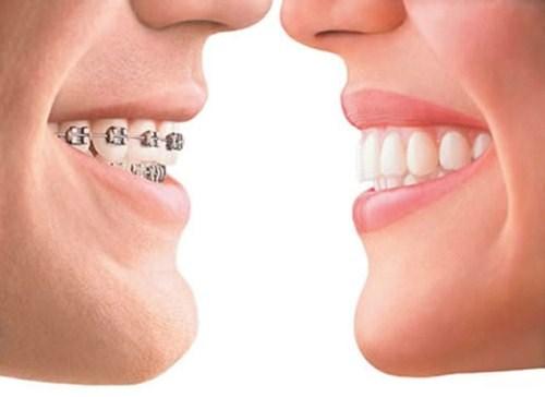 Chi phí niềng răng tháo lắp tại Cần Thơ