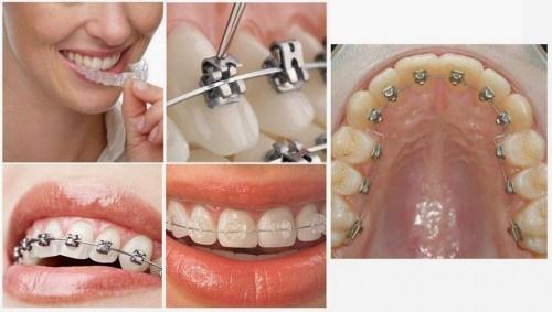Thời gian niềng răng ở Cần Thơ khoản bao lâu?