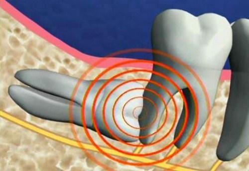 Sao cần phải nhổ răng số 8 | Nhổ Răng Cần Thơ