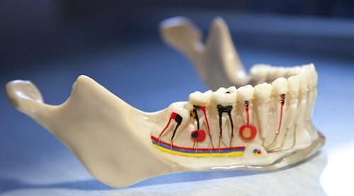 Viêm Tủy Răng Có Làm Mất Răng Không? Nha Khoa Cần Thơ