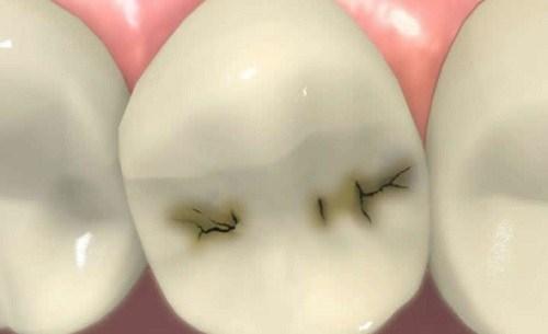 Mức Độ Của Bệnh Sâu Răng | Nha Khoa Cần Thơ