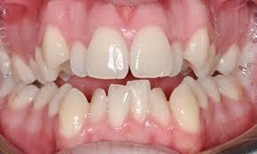 Răng mọc lệch nó nên trồng sứ hay không | Răng sứ Cần Thơ