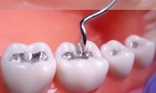 Trám răng thẩm mỹ tại Nha khoa Cần Thơ có bị đổi màu sau một thời gian trám ...