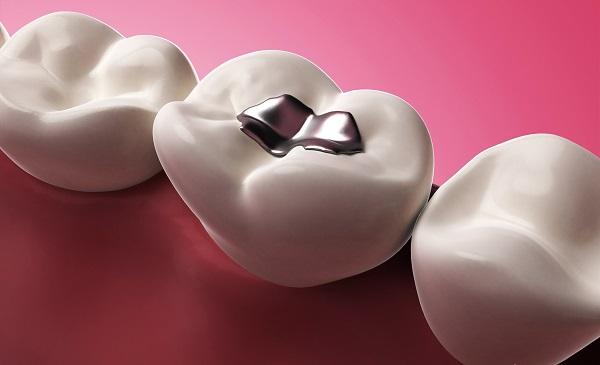 Trám răng tại Nha khoa Cần Thơ có cần lấy tủy không