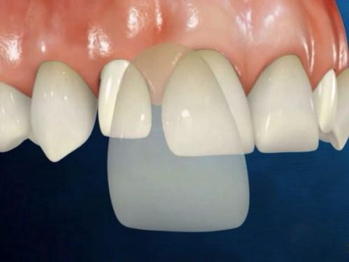 Răng Sứ Cần Thơ | Những Vấn Đề Thường Gặp Sau Khi Trồng Răng Sứ